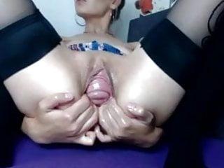 Cervix prolapse porn